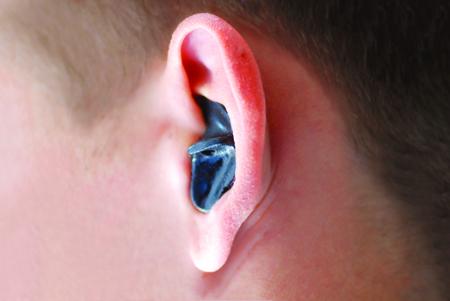 Заложило уши после купания что делать в домашних условиях 898